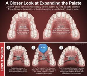 palatal expanders